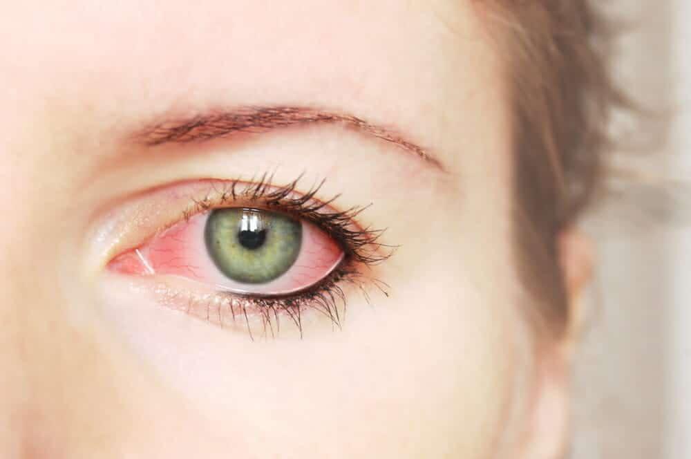 What Are Eyelash Mites Healthstatus