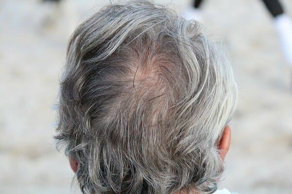 A bald head
