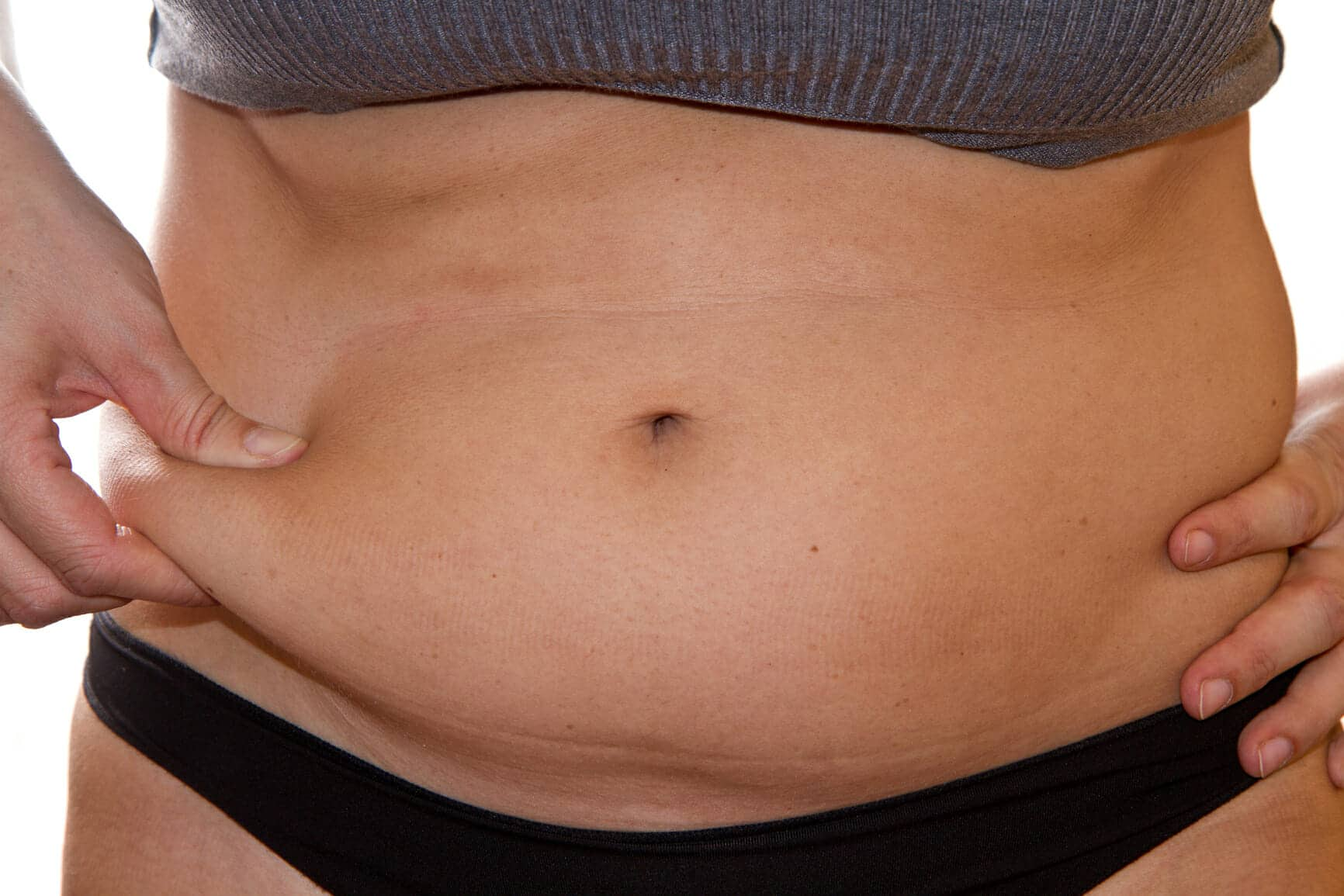 Woman having fat belly