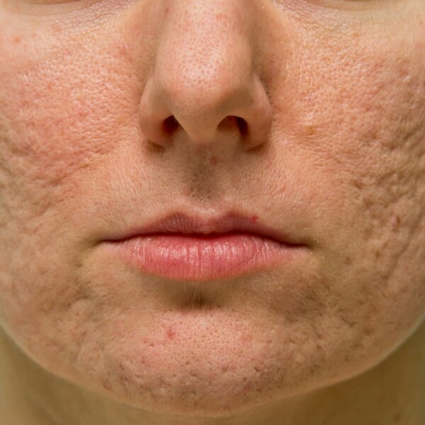 acne acne adult treatment