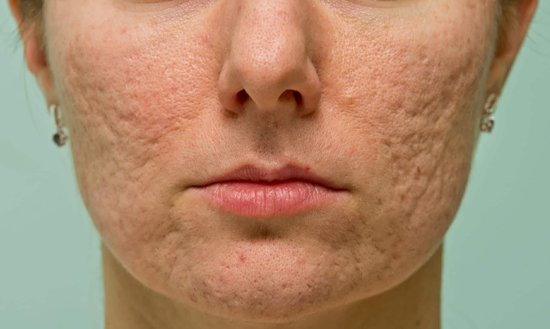 Acne scar dating site