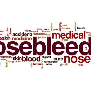 epistaxis-bloody-nose