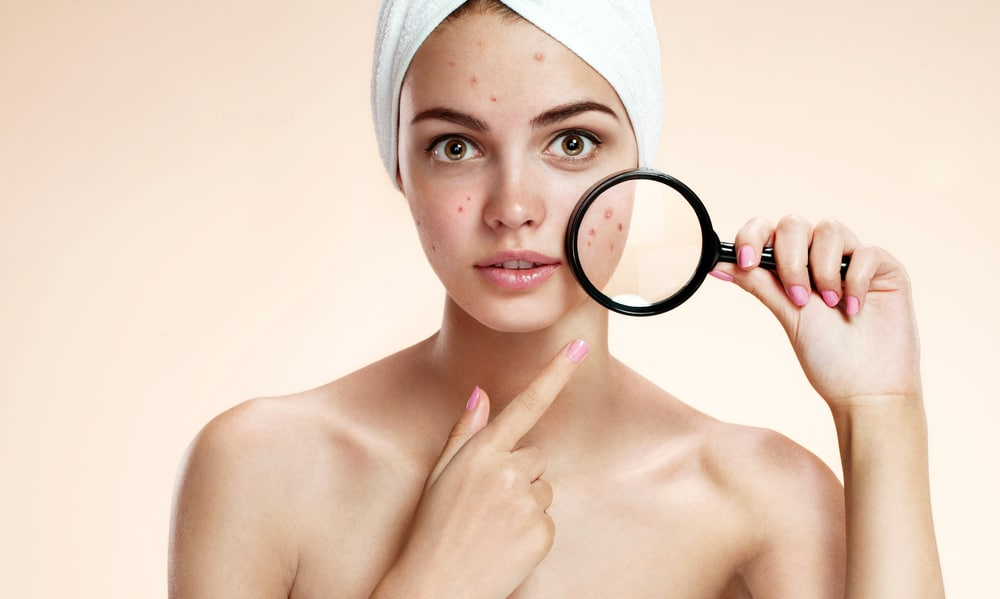 Acne and PCOS: Nine Tips for Clear Skin