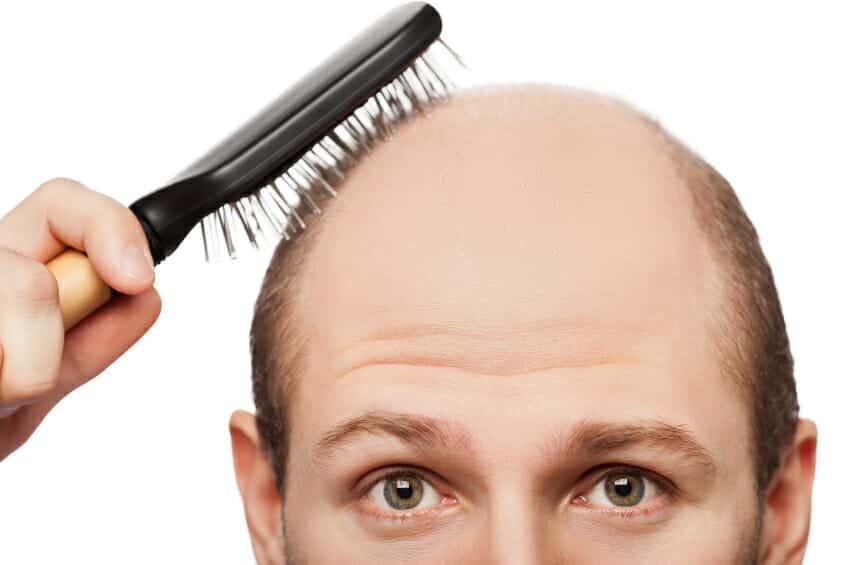 need-hair-transplant