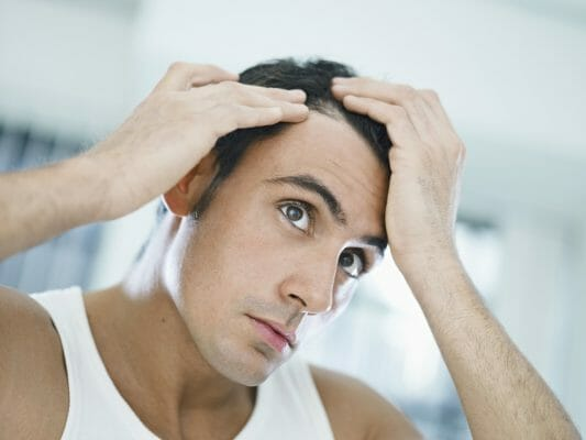 man-needs-hair-transplant-alternatives