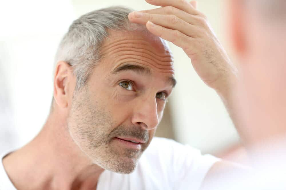 man-thinking-about-hair-transplant