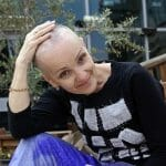 Woman lost her hair during chemotherapy