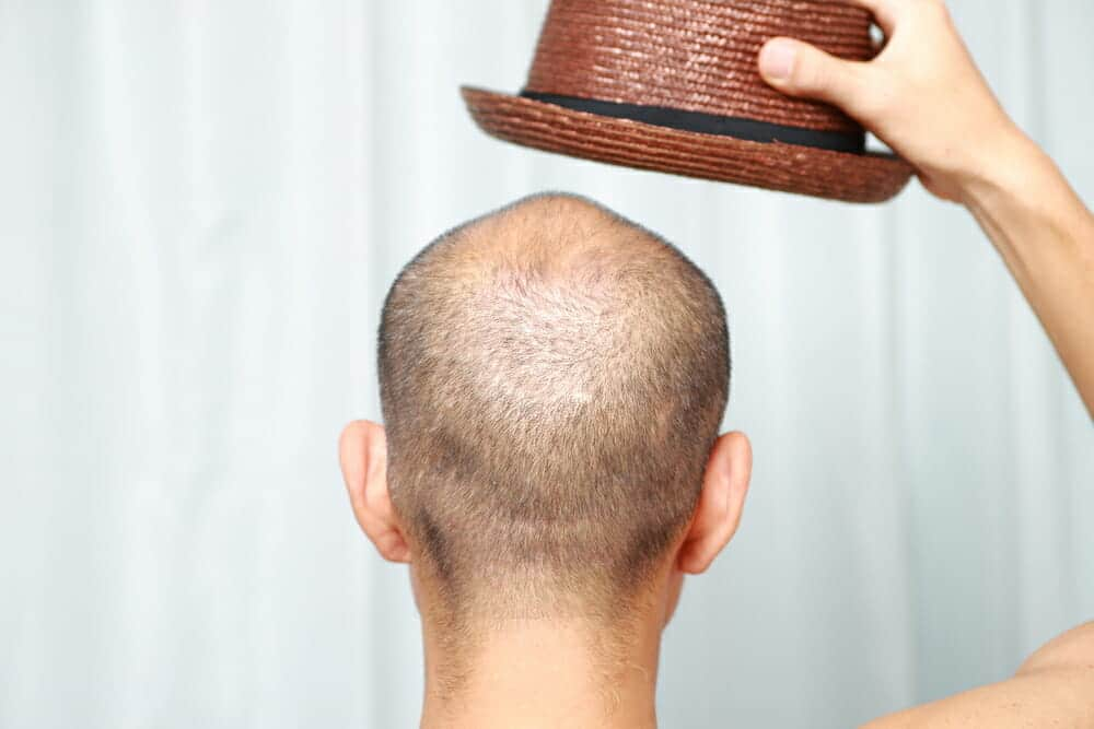 thin-hair-hat