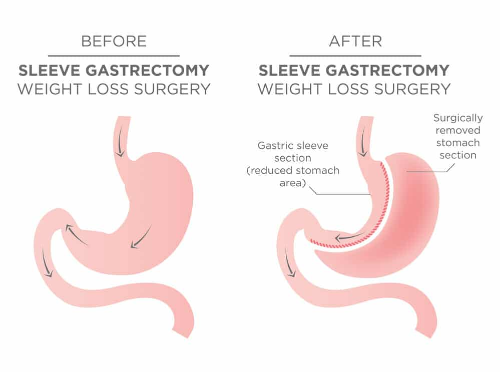 Vertical Sleeve Gastrectomy Also Known As Gastric Surgery Is To Ist In Significant Weight Loss During This The Surgeon Removes