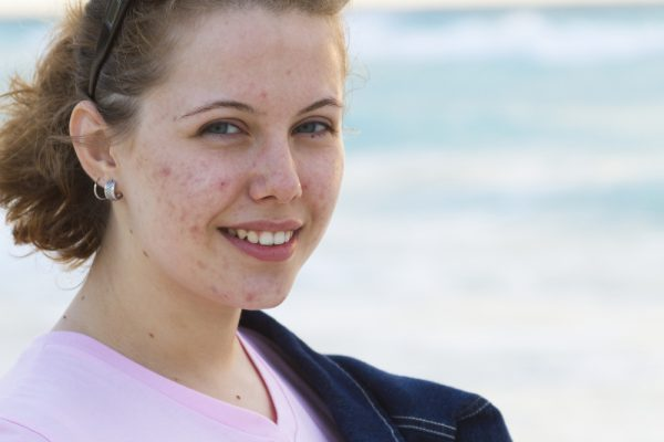 PCOS and Adult Acne: 8 Things You Can Do About It! | HealthStatus